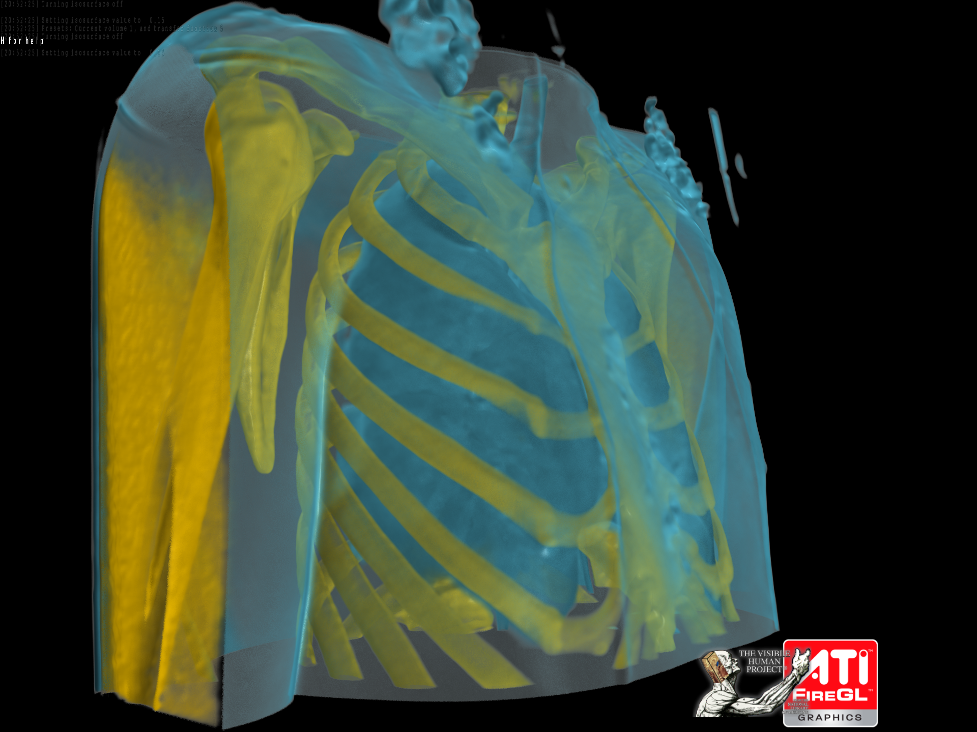 FireGL™ V8600 PCI-Express Real-Time Demos - Medical Visualization